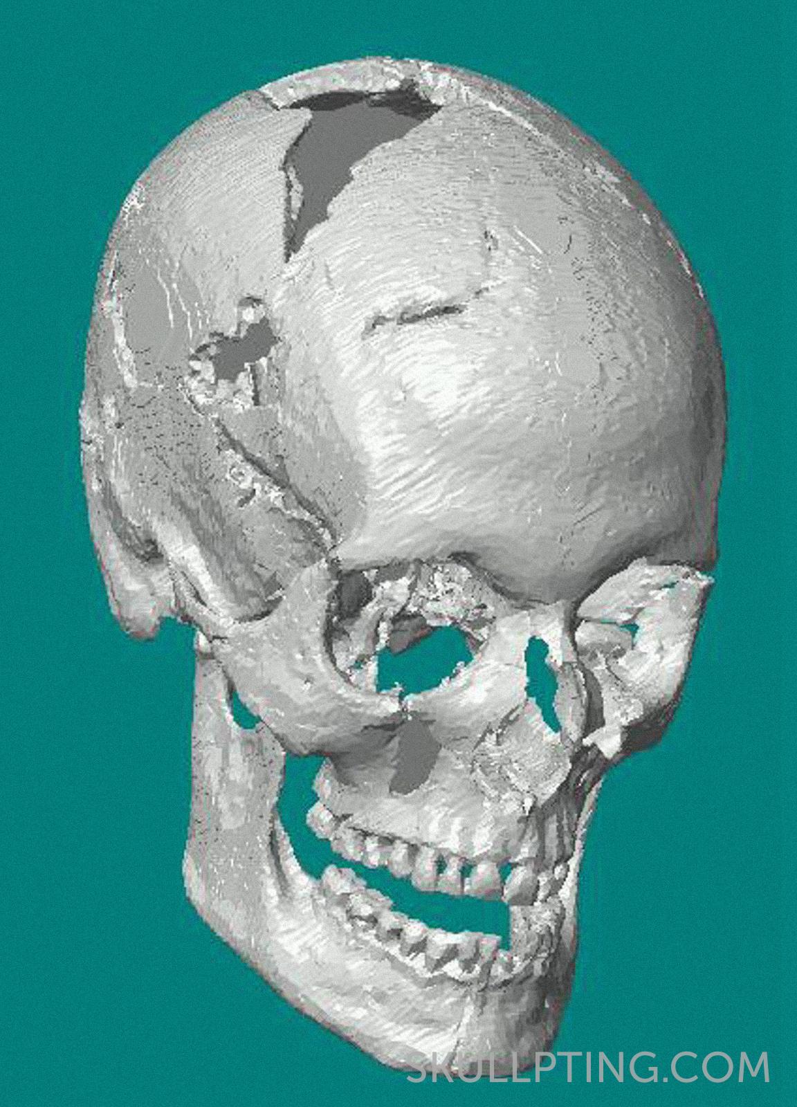 De virtuele schedel na het CT-scannen.