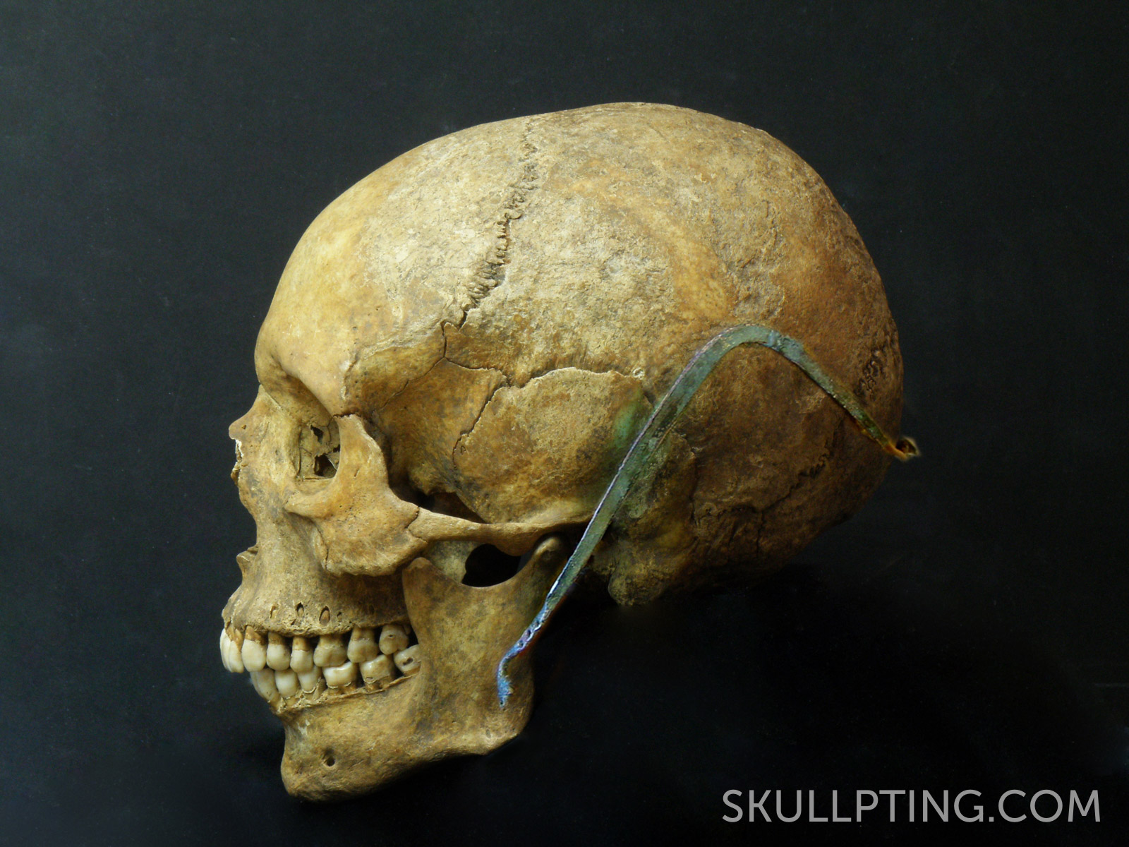 Skull with cap broach.